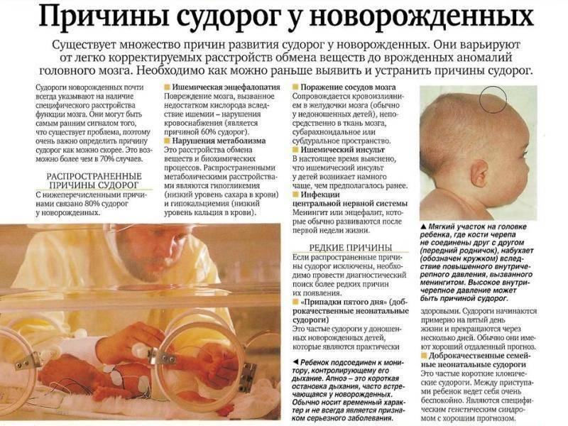 Судорожный синдром у детей — причины появления судорог, симптомы, способы профилактики