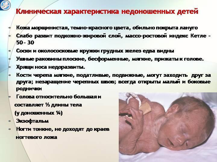 Применение нервно-регулируемой искусственной вентиляции легких у недоношенных новорожденных