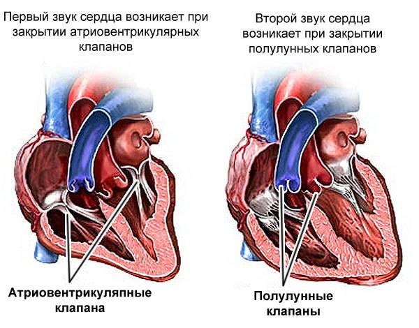У ребенка шумы в сердце: основные причины, диагностика, подходы к лечению