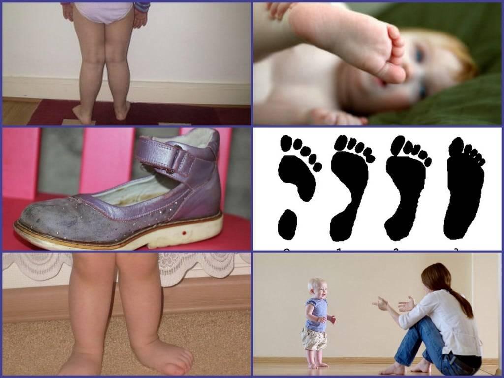 Косточка на ноге (вальгусная деформация)