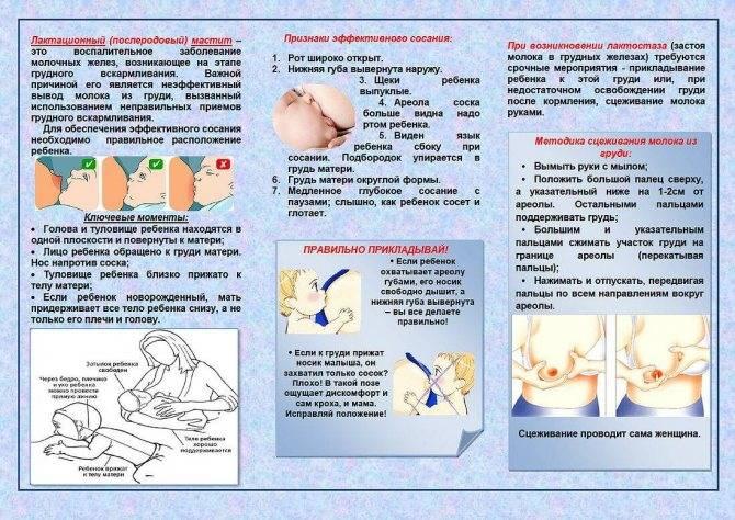 Мастит: признаки, симптомы и лечение – напоправку – напоправку