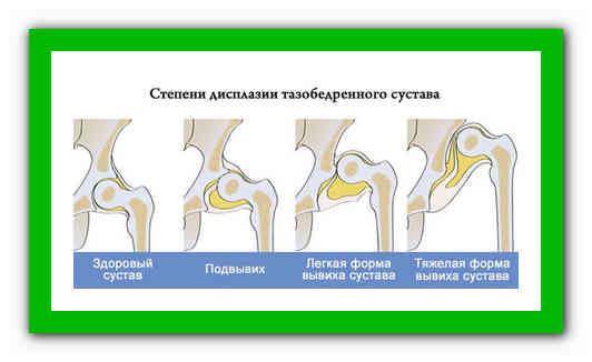 Дисплазия тазобедренных суставов у детей и новорожденных - medside.ru