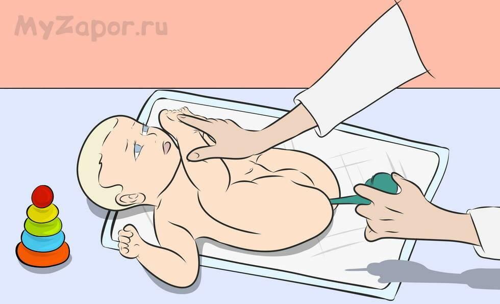 Особенности запоров у детей: на какие признаки стоит обратить внимание   микролакс®