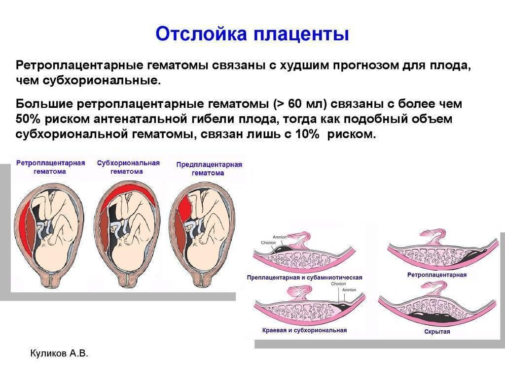 Плотное прикрепление или приращение плаценты - причины, диагностика и лечение