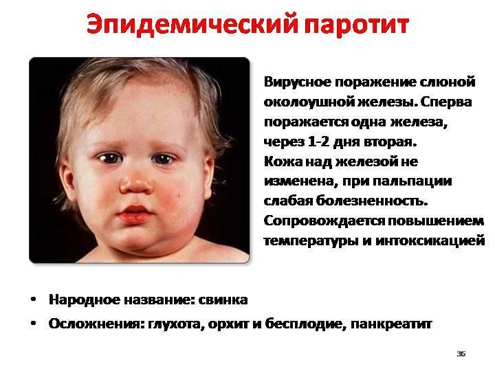 Лечение орхита у детей: постановка диагноза по симптомам, выяснение причин болезни, назначение курса терапии