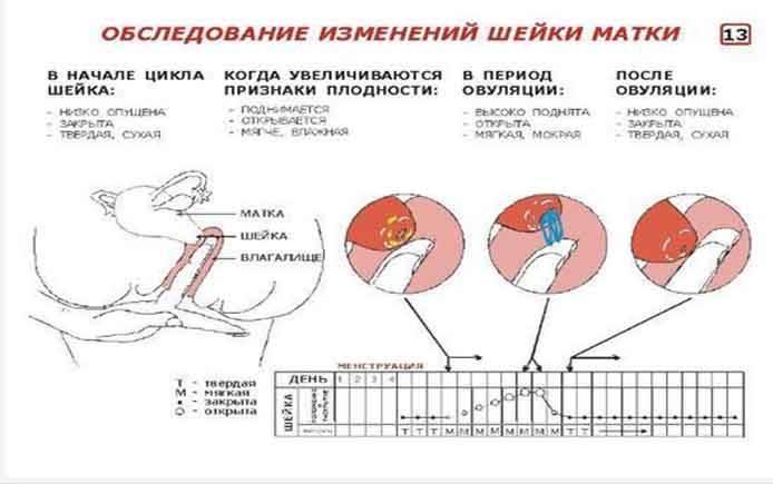 Полипы шейки матки: симптомы и лечение - ilaya