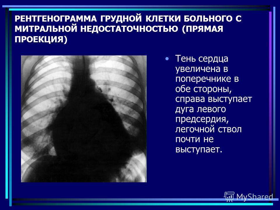 Кт или рентген легких: что лучше?