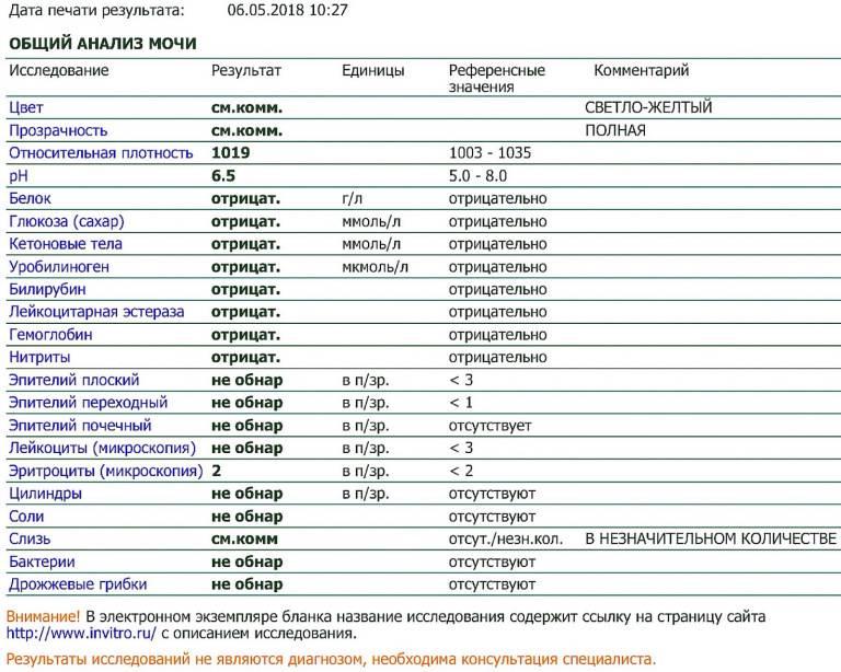 Анализ мочи, расшифровка -  нормы белка, эритроцитов, лейкоцитов, глюкозы, эпителия, билирубина, цилиндров и бактерий