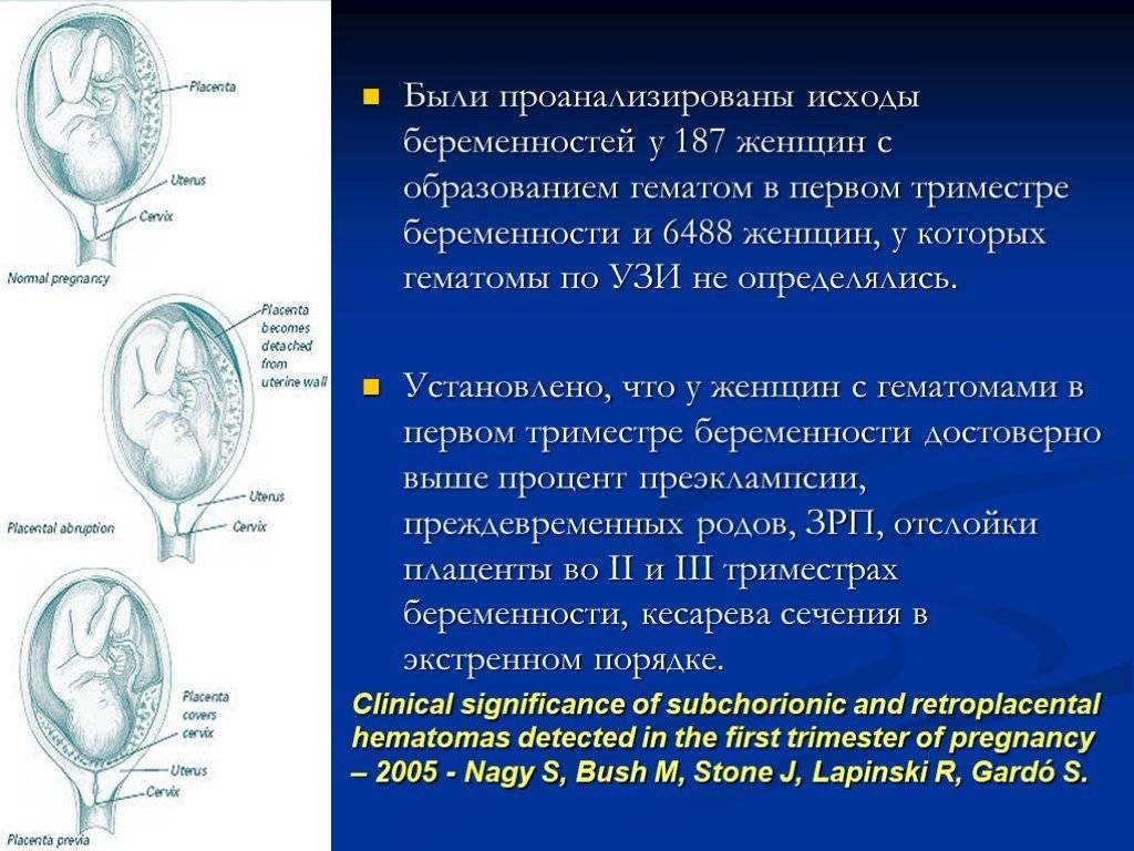 Ретрохориальная гематома при беременности, выделения, гематома в матке, размер, лечение и причины