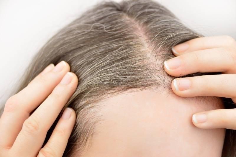 Очаговое выпадение волос: причины, лечение, профилактика