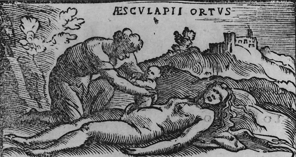 Почему кесарево сечение так называется. почему кесарево сечение называется кесаревым. откуда взялось название операции