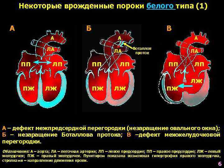 Эндоваскулярное лечение дефекта межжелудочковой перегородки