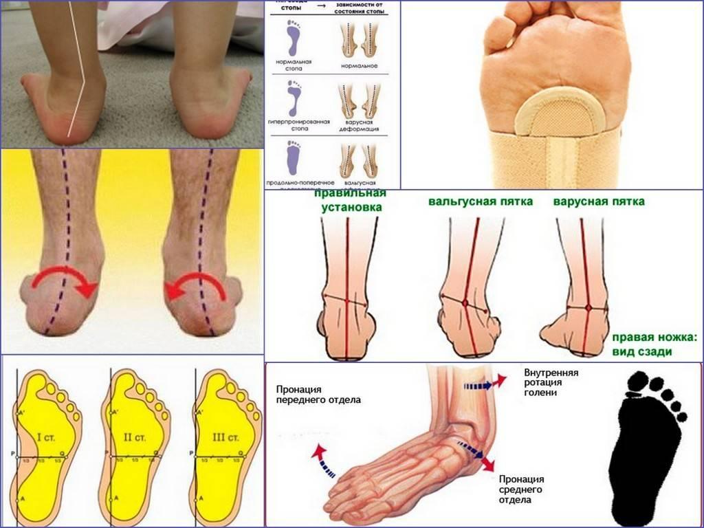 Тактика лечения эквиноэкскаватоварусной деформации стоп у взрослых   кафедра травматологии и ортопедии