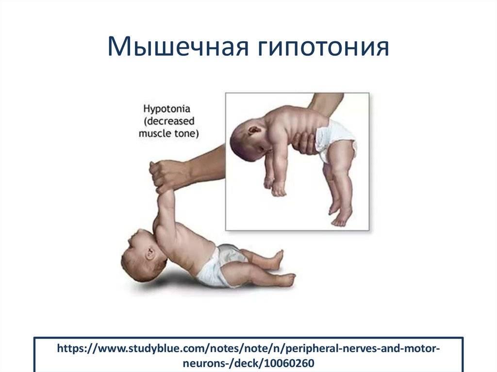 Признаки, причины и диагностика гипотонуса у грудничка