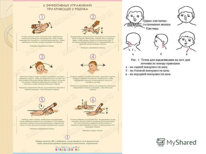 Как делать массаж при кривошее у грудничков в 3-4 месяца?