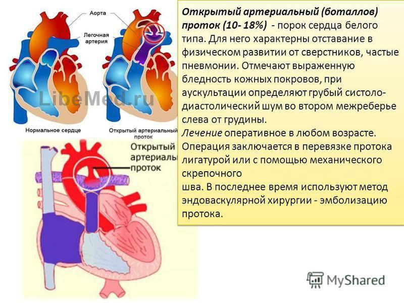 Пороки сердца у детей