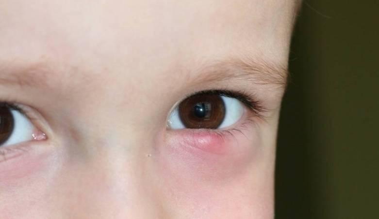 Ячмень у ребенка: симптомы, причины появления, методы лечения
