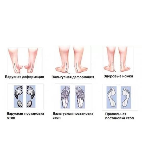 Тактика хирургического лечения при вальгусной деформации костей предплечья