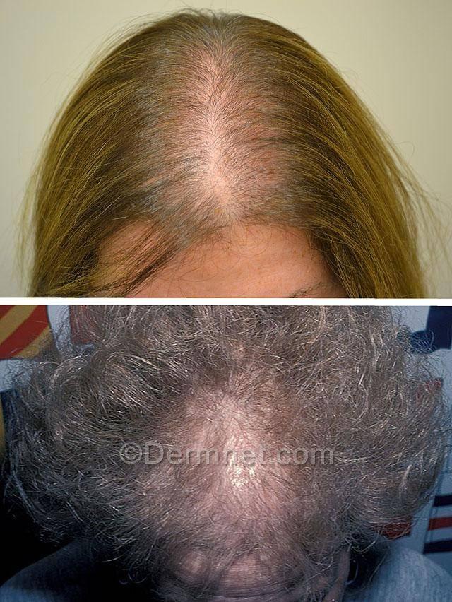 Выпадение волос прядями. что делать при выпадении волос пучками