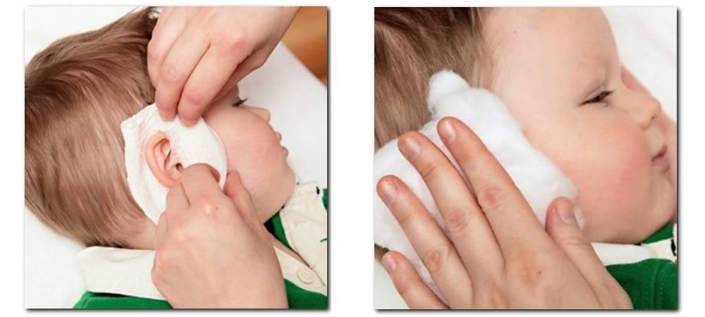 Эфирные масла при облысении: эффективные маски от выпадения волос