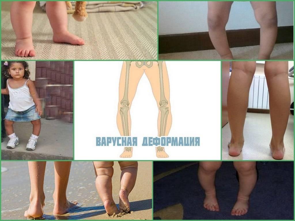 Вальгусная деформация стопы у детей   симптомы   диагностика   лечение - docdoc.ru