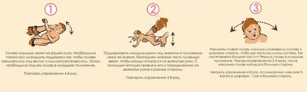 Профилактический и лечебный массаж ребенку при кривошее