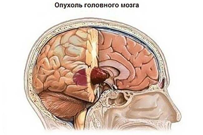 Злокачественные опухоли желудка