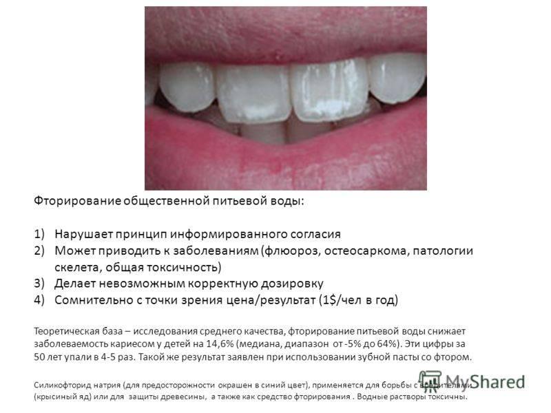 Глубокое фторирование твердых тканей зубов: показания, цены, отзывы