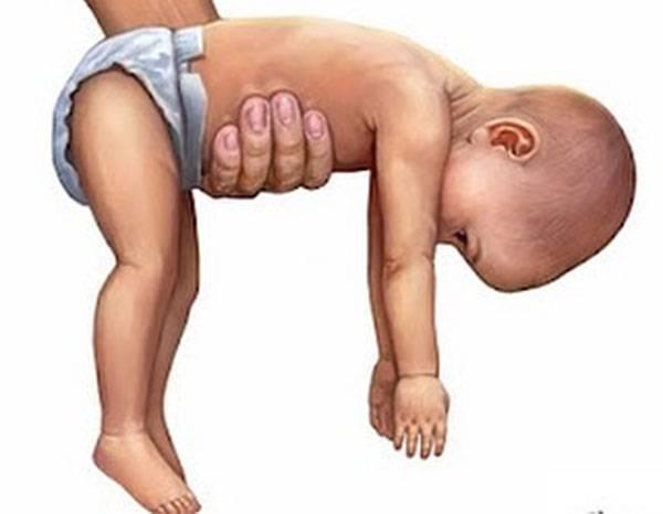 Мышечная гипотония: причины, симптомы, лечение   компетентно о здоровье на ilive