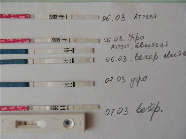Миома матки при беременности: рекомендации гинеколога