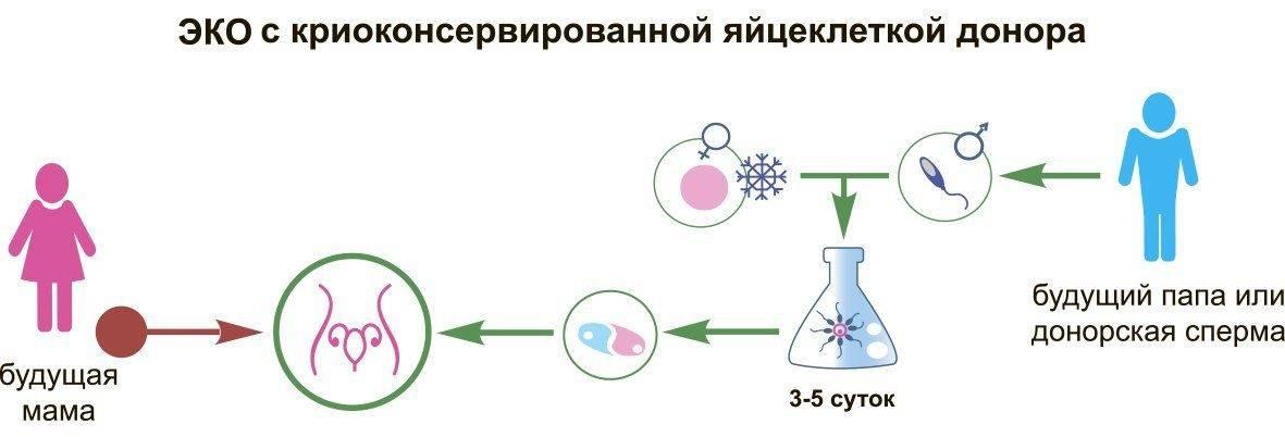 Как выбрать донора яйцеклетки (ооцитов) для эко?