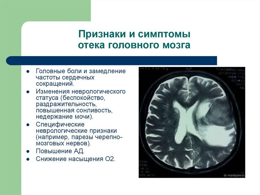 Виды опухолей у детей