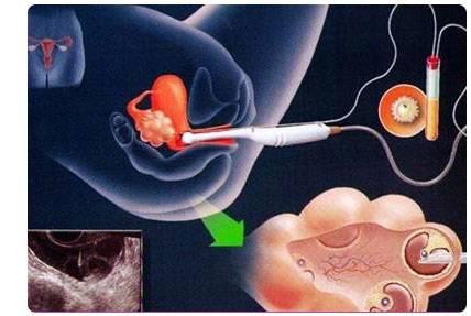 Беременность после переноса эмбрионов из «пробирки»