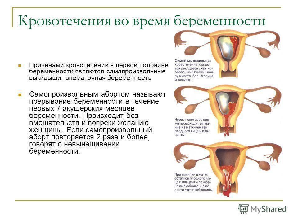 40 неделя беременности: выделения и болезненные ощущения в животе