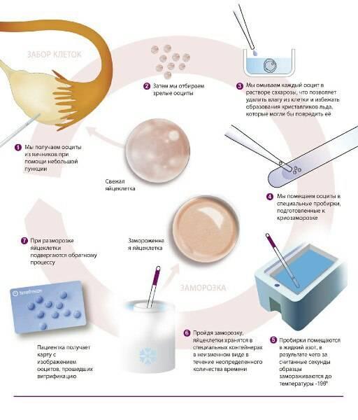 Донорство яйцеклеток: что должен знать донор