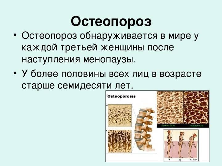 Остеопороз: симптомы и лечение. профилактика и диагностика остеопороза суставов.
