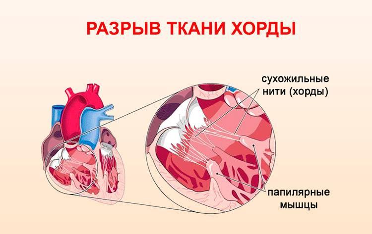 Что такое дополнительная хорда левого желудочка: признаки, лечение