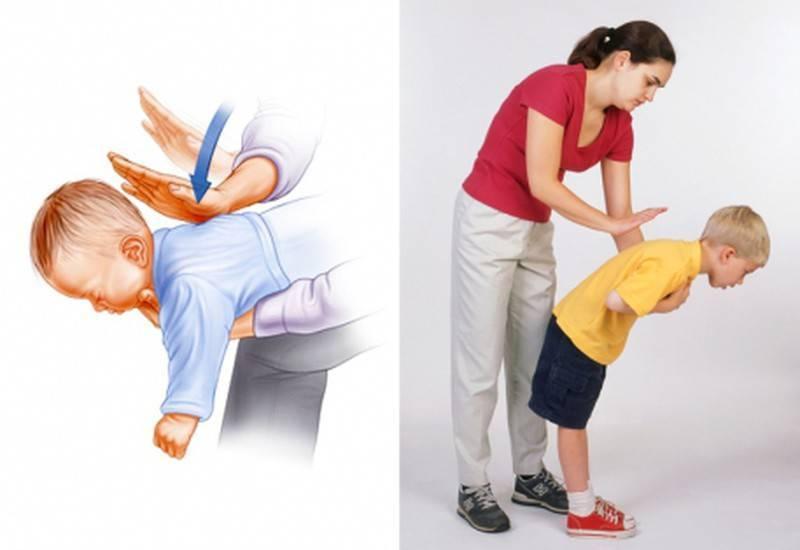 Что делать, если ребенок задыхается - medical insider