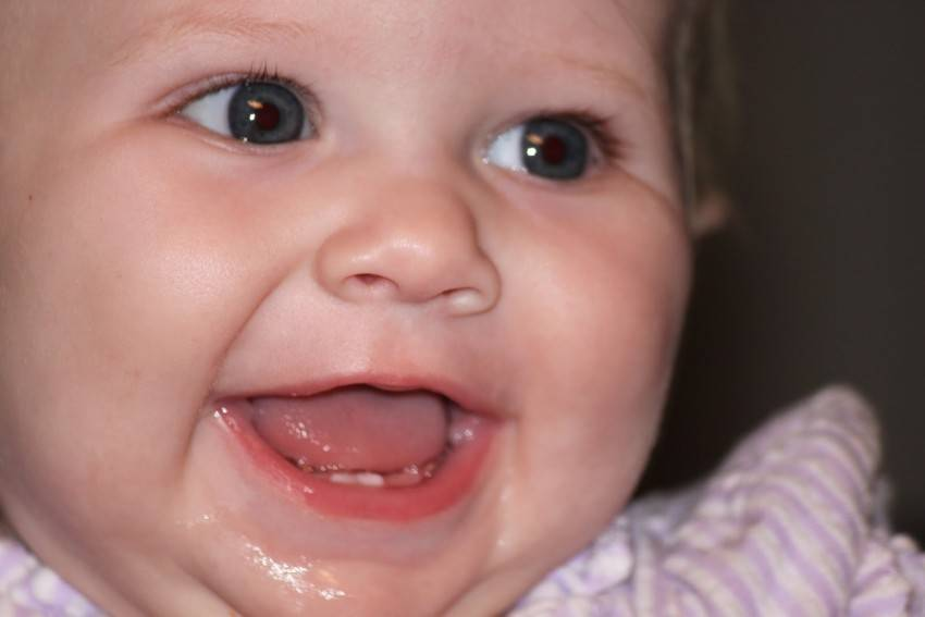 Задержка прорезывания молочных зубов