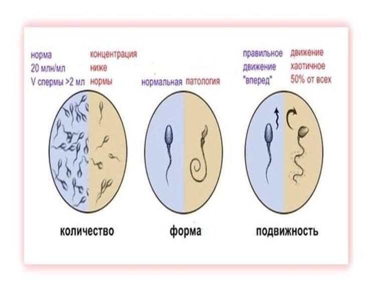 Лечение бесплодия бесплодие у мужчин мужское бесплодие