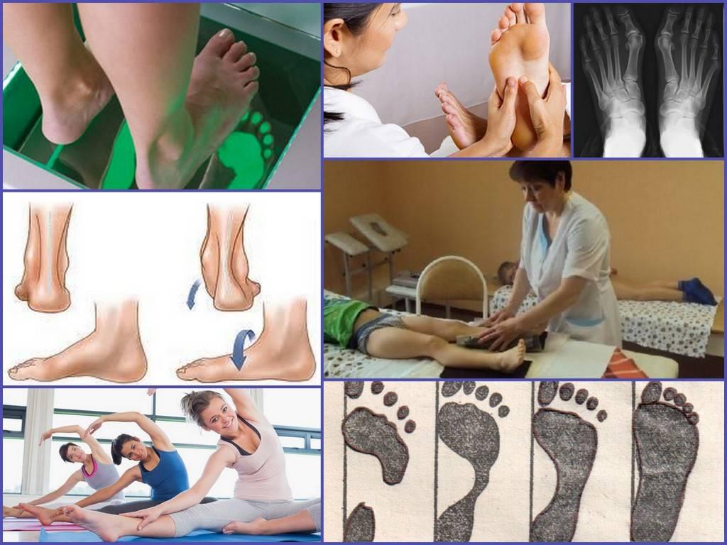 Вальгусная деформация стопы - лечение у детей: массаж, упражнения. какая обувь и стельки нужны?